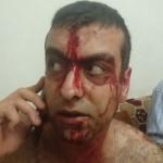 بالصور | إعتداء بالضرب على الأب إيلي كيروز كاهن رعية مار اسطفان في بلدة العذرا و على ابنه