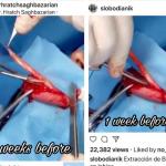 طبيب اجنبي ينسب عملية لدكتور هراتش على انها له ويسرق الشريط